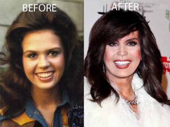 Marie Osmond Plastic Surgery Marie Osmond Plastic Surgery Before and After Picture