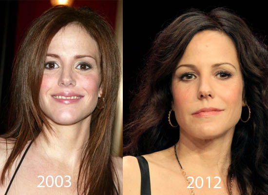 Mary Louise Parker Plastic Surgery Mary Louise Parker Plastic Surgery Before and After