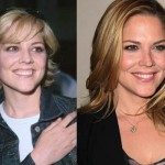 Mary McCormack Plastic Surgery for Lip Enhancement