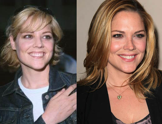 Mary McCormack Plastic Surgery Mary McCormack Plastic Surgery for Lip Enhancement