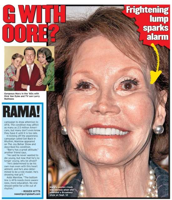 Too Much Plastic Surgery For Mary Tyler Moore