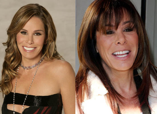 Melissa Rivers Plastic Surgery Melissa Rivers Plastic Surgery Before and After Pictures