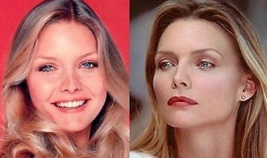 Michelle Pfeiffer Plastic Surgery Pics Michelle Pfeiffer Plastic Surgery