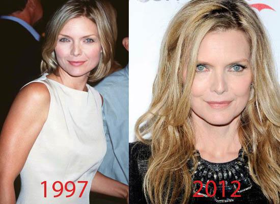 Michelle Pfeiffer Plastic Surgery Michelle Pfeiffer Plastic Surgery