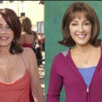 Patricia Heaton Plastic Surgery for Breast Reduction