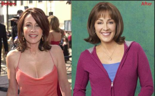 Patricia Heaton Plastic Surgery Patricia Heaton Plastic Surgery for Breast Reduction