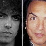 Paul Stanley Plastic Surgery Before and After Picture