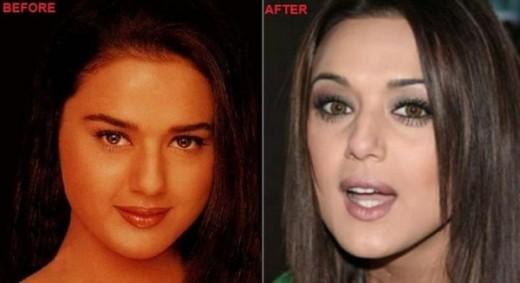 Preity Zinta Plastic Surgery Preity Zinta Plastic Surgery Rumors   Before and After