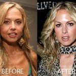 Rachel Zoe Plastic Surgery Before and After