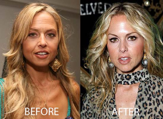 Rachel Zoe Plastic Surgery Rachel Zoe Plastic Surgery Before and After