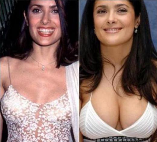 Salma Hayek Plastic Surgery Picture Salma Hayek Plastic Surgery Rumors   Before and After