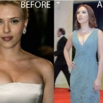 Scarlett Johansson Breast Reduction Before and After