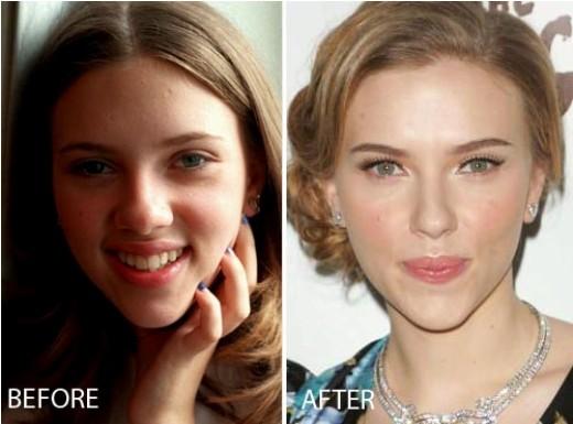 Scarlett Johansson Nose Job Before After Scarlett Johansson Nose Job Before and After Pictures