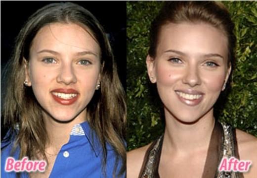 Scarlett Johansson Nose Job Picture Scarlett Johansson Nose Job Before and After Pictures