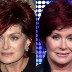 Sharon Osbourne Plastic Surgery Before and After Pictures