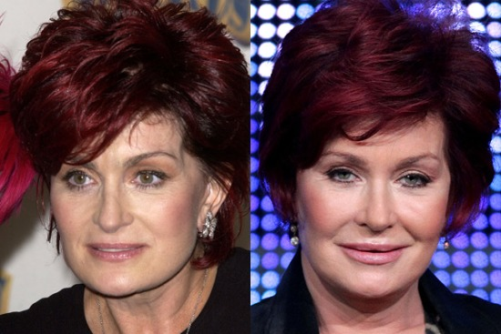 Sharon Osbourne Plastic Surgery Sharon Osbourne Plastic Surgery Before and After Pictures