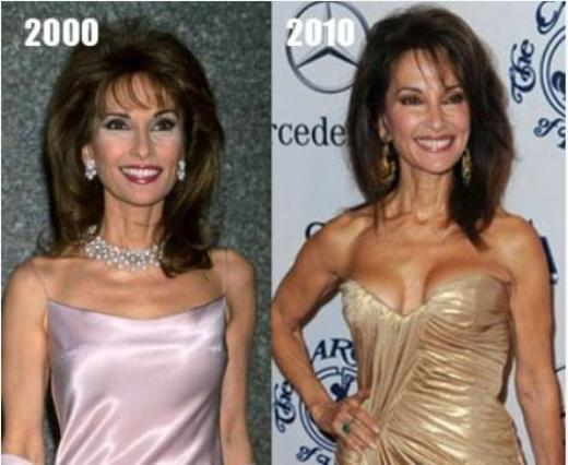 Susan Lucci Plastic Surgery Before and After Susan Lucci Plastic Surgery Before and After