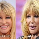 Suzanne Somers Plastic Surgery Before and After Picture