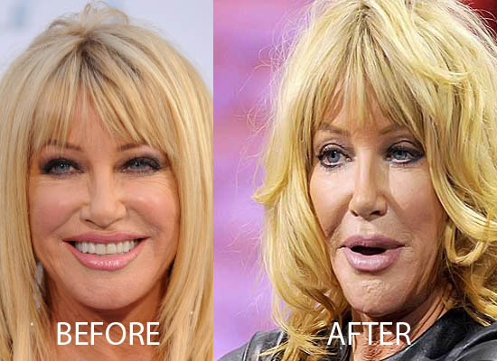Suzanne Somers Plastic Surgery Suzanne Somers Plastic Surgery Before and After Picture