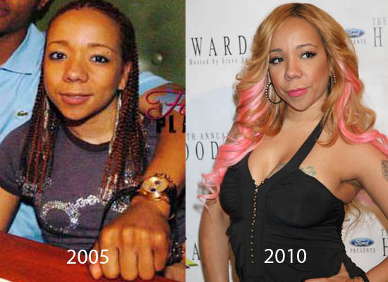 Tameka Cottle Plastic Surgery Tameka Cottle Plastic Surgery Before and After