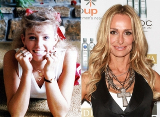 Taylor Armstrong Before and After Taylor Armstrong Before and After Plastic Surgery Pictures