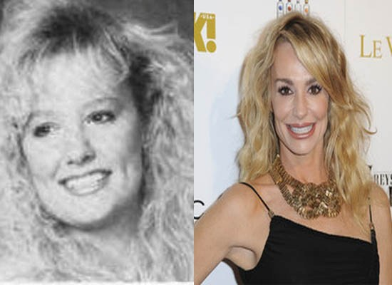 Taylor Armstrong Plastic Surgery Before and After Taylor Armstrong Before and After Plastic Surgery Pictures