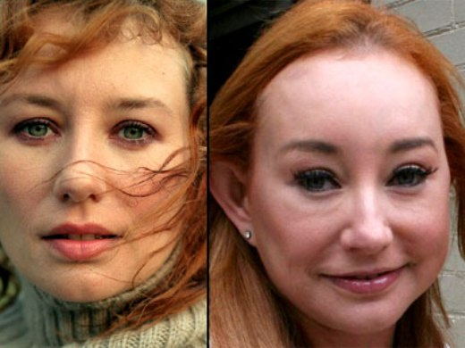 Tori Amos Before and After Plastic Surgery Tori Amos Plastic Surgery Before and After
