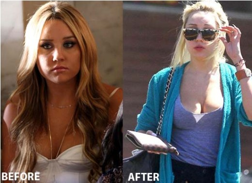 Amanda Bynes Boob Job Amanda Bynes Boob Job Before and After