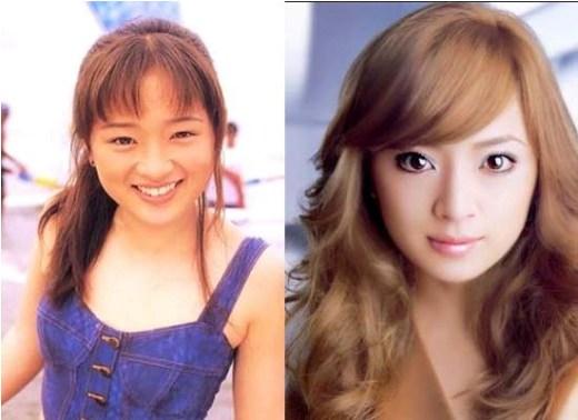 Ayumi Hamasaki Plastic Surgery Ayumi Hamasaki Plastic Surgery Before and After Pictures