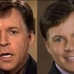 Did Bob Costas Have Plastic Surgery?