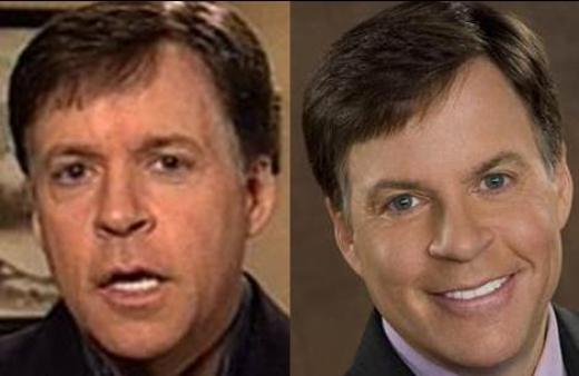 Bob Costas Plastic Surgery Did Bob Costas Have Plastic Surgery?