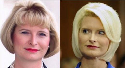 Callista Gingrich Plastic Surgery Callista Gingrich Plastic Surgery Before and After