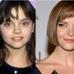 Christina Ricci Plastic Surgery Before and After