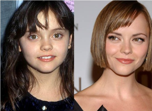 Christina Ricci Plastic Surgery1 Christina Ricci Plastic Surgery Before and After