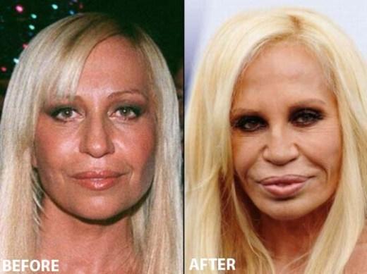 Donatella Versace Plastic Surgery Donatella Versace Plastic Surgery Before and After