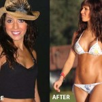 Farrah Abraham Breast Implants Before and After