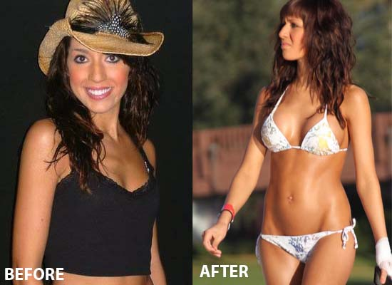 Farrah Abraham Breast Implants Farrah Abraham Breast Implants Before and After