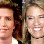 Greta Van Susteren Plastic Surgery Before and After
