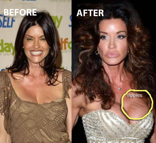 Janice Dickinson Plastic Surgery Before After Janice Dickinson Plastic Surgery Before and After