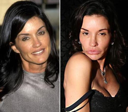 Janice Dickinson Plastic Surgery Janice Dickinson Plastic Surgery Before and After