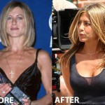 Jennifer Aniston Breast Implant Before and After