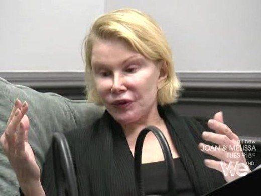 Joan Rivers Plastic Surgery Pic Joan Rivers Plastic Surgery Before and After