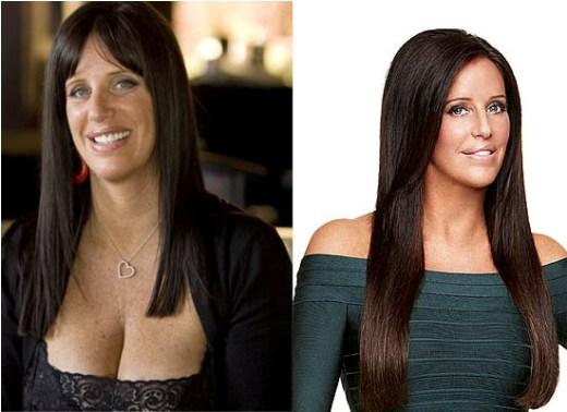Patti stanger before plastic surgery