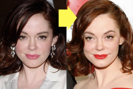 Rose Mcgowan Plastic Surgery Before After Rose Mcgowan Plastic Surgery Before and After