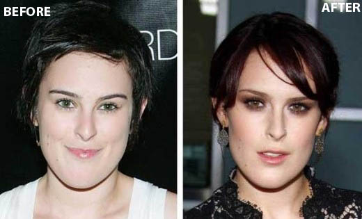 Rumer Willis Plastic Surgery Rumer Willis Plastic Surgery Before and After