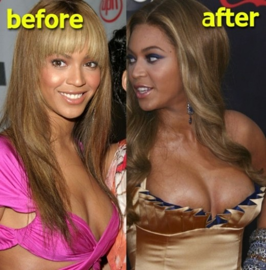 Beyonce Breast Implants Before and After Beyonce Breast Implants Before and After