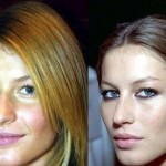 Gisele Bundchen Plastic Surgery Before and After
