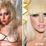 Lady Gaga Nose Job Before and After Picture