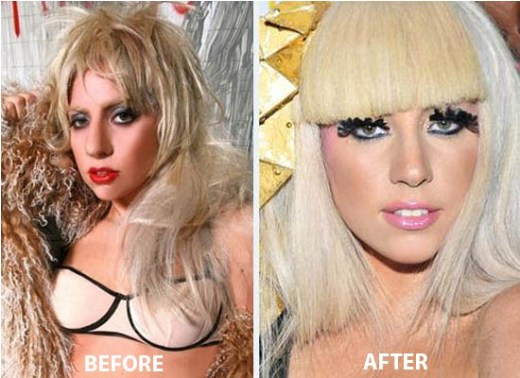 Lady Gaga Nose Job Lady Gaga Nose Job Before and After Picture