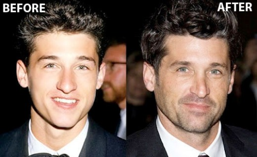 Patrick Dempsey Nose Job Patrick Dempsey Nose Job Before and After